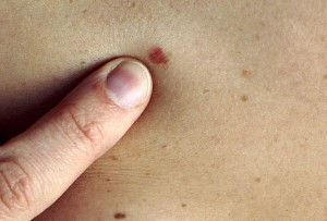 skin-cancer-symptoms