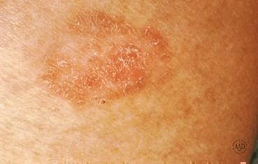 squamos-cell-carcinoma