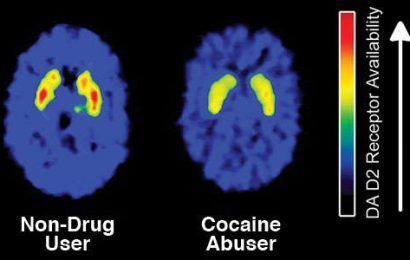 Discover the Addiction and Effects of Cocaine!