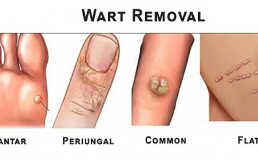 3 Common Misconceptions Regarding Wart Removal